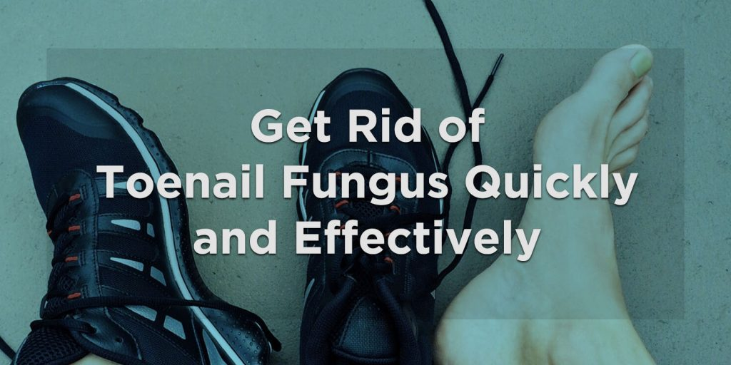 Get Rid of Toenail Fungus Quickly and Effectively